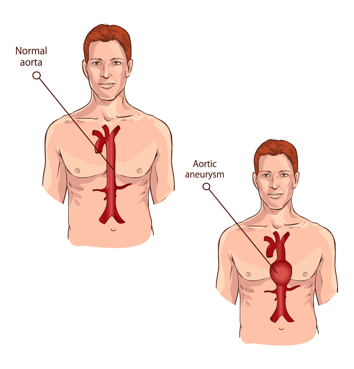 Normal aorta and aorta with aneurysm illustration