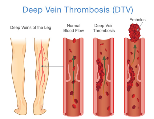 Illustration of deep vein thrombosis occurring in a leg.