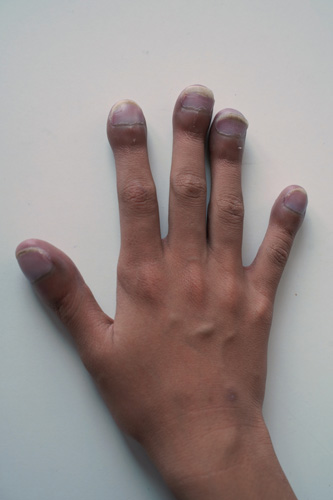 Hand with clubbed fingers.
